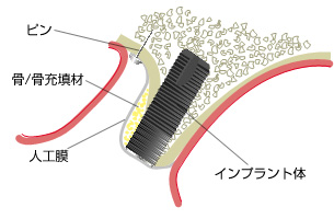 GBR(Guided Bone Regeneration)骨再生誘導法