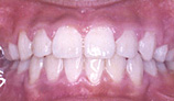 orthodontic_img004