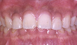 orthodontic_img007