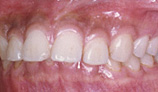orthodontic_img008